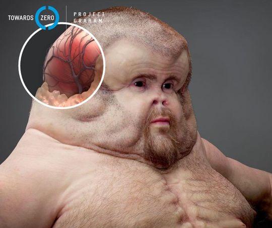 Грэм: «человек»-мутант, который сможет выжить в любых ДТП