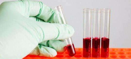 ГИБДД предлагает брать кровь для оценки состояния опьянения принудительно