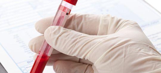 Уже с лета 2018 года опьянение будут определять по крови, а не только по выдоху
